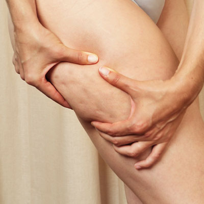 CelluScience Review: The Cellulite-Fighting Pill