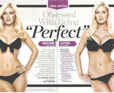 Heidi Montag Before and After – Plastic Surgery: Get It or Forget It?
