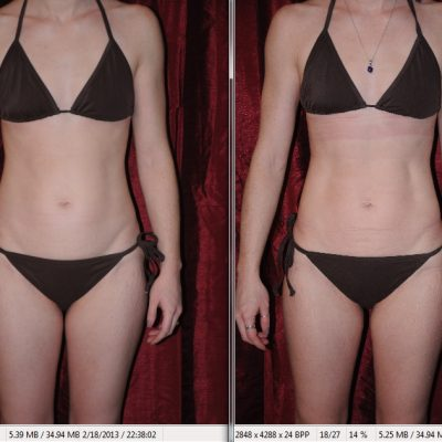 Review (with before and after pictures) of i-Lipo Laser Liposuction Treatment