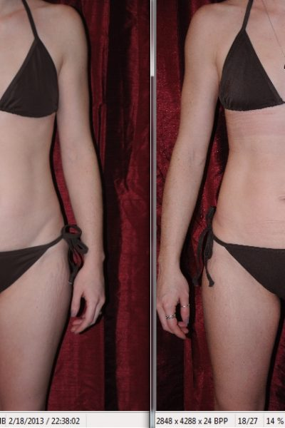 i-lipo before and after