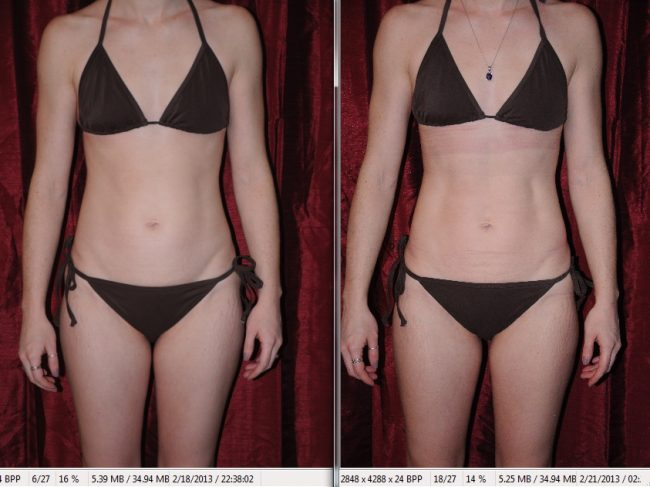 Review (with before and after pictures) of i-Lipo Laser ...