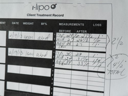 i-lipo before and after measurements