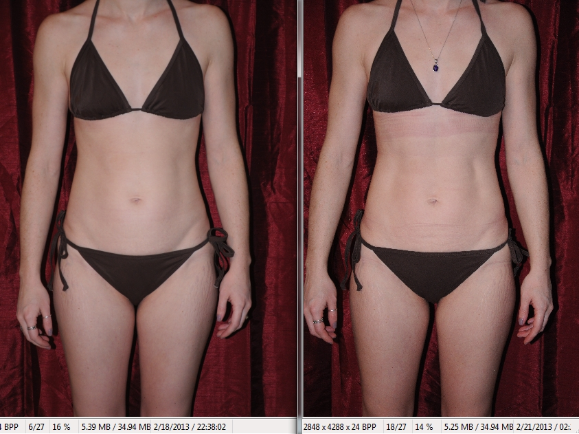 Lovely I Lipo Before And After Awesome Design