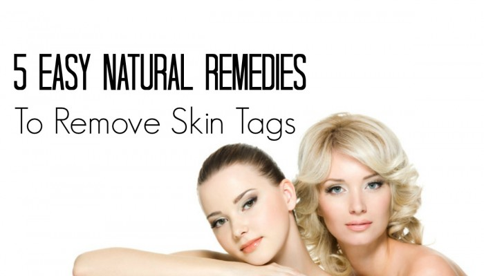 5 Easy Natural Remedies to Remove Skin Tags