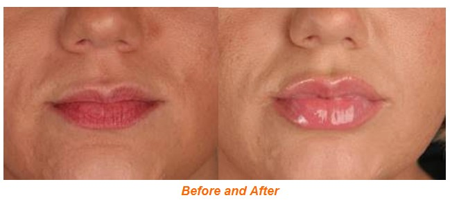Get Fuller, Plumper Lips in 28 Days with CITY Lips