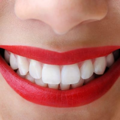 The Truth About Teeth Whitening (And What They Didn't Tell You)