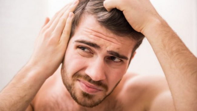 Fashionable Husbands: How to Fight Male Pattern Baldness