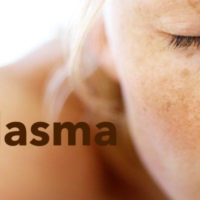 3 of The Best Treatments To Lighten Melasma