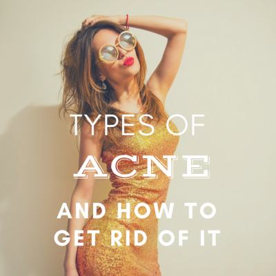Types of Acne And How To Get Rid Of It