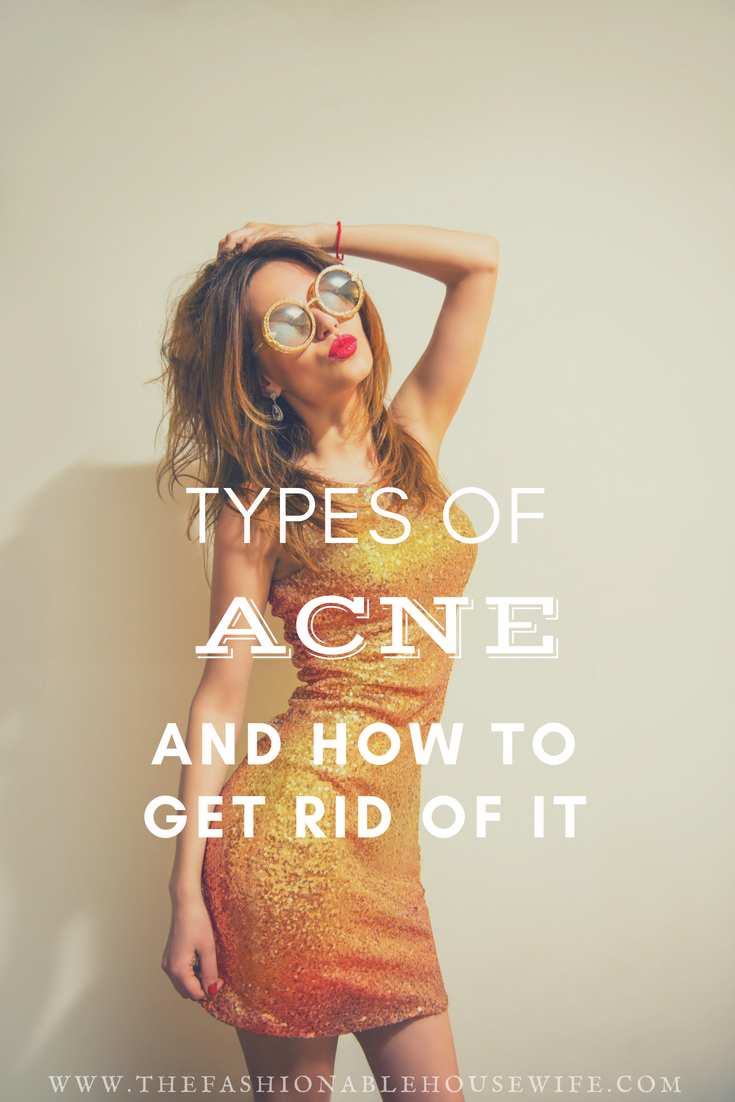 acne how to get rid of it