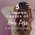 5 Common Causes of Hair Loss in Both Men and Women