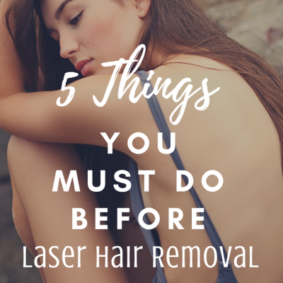 5 Things You Must Do Before Laser Hair Removal