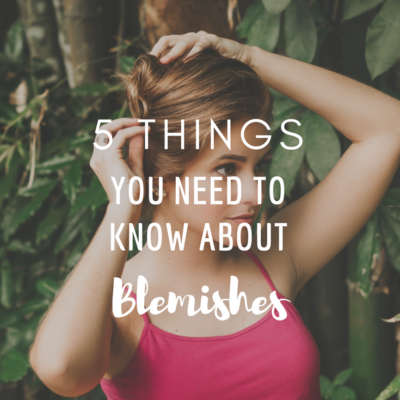 5 Things You Need To Know About Skin Blemishes