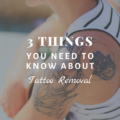 3 Things You Need To Know About Tattoo Removal