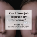 Can A Nose Job Improve My Breathing? A Guide To Functional Rhinoplasty