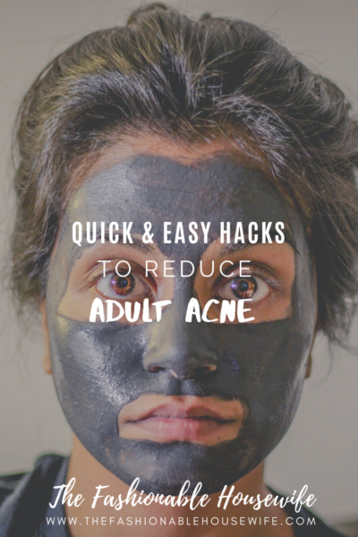 Quick & Easy Hacks To Reduce Adult Acne